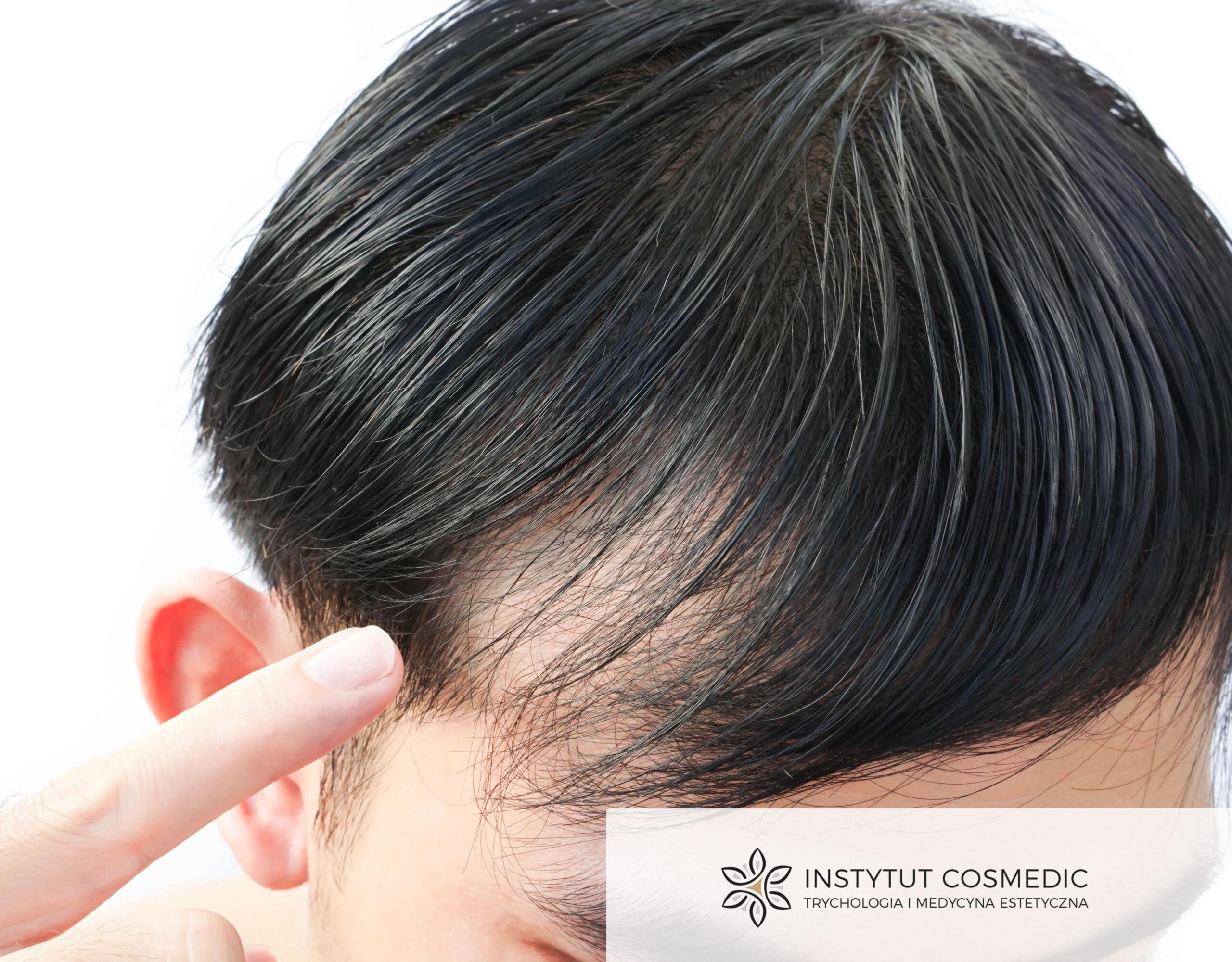 Włosy pod kontrolą! Najlepsze rozwiązania na problemy skóry głowy