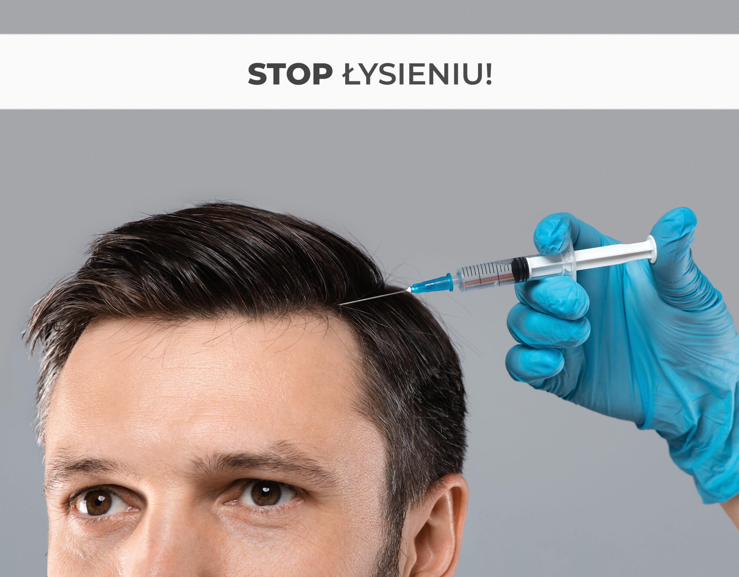 Peptydowa kuracja DR. CYJ Hair Filler - nowoczesny sposób na łysienie